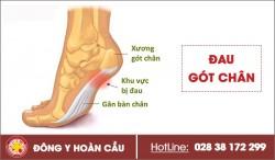 Lý do đau gót chân mà nhiều người hay gặp phải   Phòng khám đa khoa Hoàn Cầu