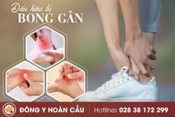 Bong gân: Nguyên nhân, triệu chứng và cách khắc phục hiệu quả | Phòng khám đa khoa Hoàn Cầu