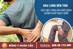 Cẩn thận khi bị đau lưng bên trái – dấu hiệu cảnh báo của bệnh xương khớp   Phòng khám đa khoa Hoàn Cầu