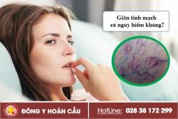 Giãn tĩnh mạch có nguy hiểm không? | Phòng khám đa khoa Hoàn Cầu