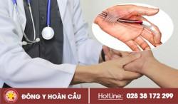 Ngón tay cò súng là bệnh gì? Triệu chứng và cách chữa trị hiệu quả | Phòng khám đa khoa Hoàn Cầu
