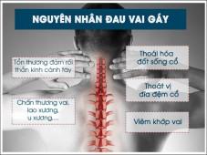 Nguyên nhân vì sao bị đau vai gáy và bí quyết điều trị bệnh thành công   Phòng khám đa khoa Hoàn Cầu