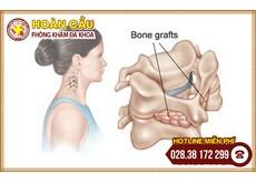 Nhận biết thoát vị đĩa đệm cột sống cổ qua các triệu chứng | Phòng khám đa khoa Hoàn Cầu