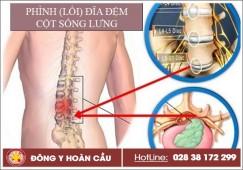 Phình (lồi) đĩa đệm cột sống lưng có chữa được không? | Phòng khám đa khoa Hoàn Cầu