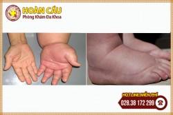 Phù nề tay chân - dấu hiệu nhiều bệnh nguy hiểm   Phòng khám đa khoa Hoàn Cầu