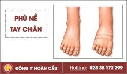 Cảnh giác với hiện tượng phù nề tay chân hay gặp ở nhiều người   Phòng khám đa khoa Hoàn Cầu