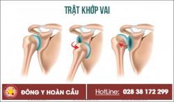 Trật khớp vai - điển hình của chấn thương xương khớp | Phòng khám đa khoa Hoàn Cầu