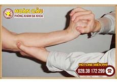 Điều trị chứng đau khuỷu tay | Phòng khám đa khoa Hoàn Cầu