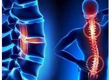 Đau lưng là dấu hiệu nguy hiểm của những căn bệnh nào ?   Phòng khám đa khoa Hoàn Cầu