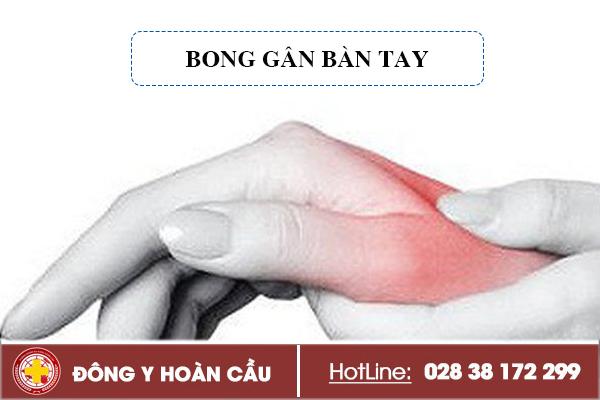Bong gân bàn tay nhận biết sớm điều trị ngay   Phòng khám đa khoa Hoàn Cầu