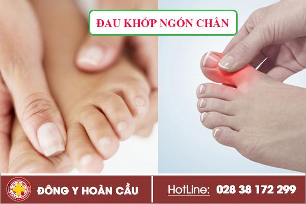 Nguy cơ tàn phế khi bị đau khớp ngón chân - cần phải điều trị ngay | Phòng khám đa khoa Hoàn Cầu