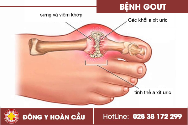 Nhận biết triệu chứng bệnh gout theo từng cấp độ   Phòng khám đa khoa Hoàn Cầu