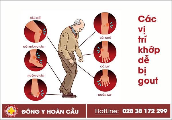 Tìm hiểu bệnh gút, mức độ nguy hiểm và cách chữa trị   Phòng khám đa khoa Hoàn Cầu