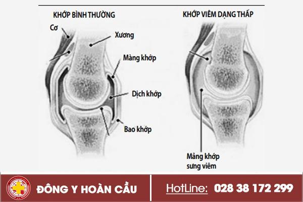 Bị đau chân có thể là dấu hiệu của bệnh lý xương khớp | Phòng khám đa khoa Hoàn Cầu