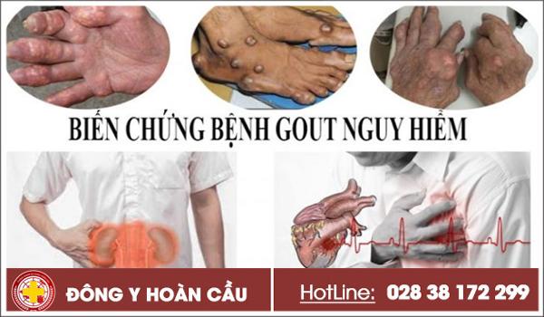 5 biến chứng nguy hiểm của bệnh gout bạn nên biết   Phòng khám đa khoa Hoàn Cầu