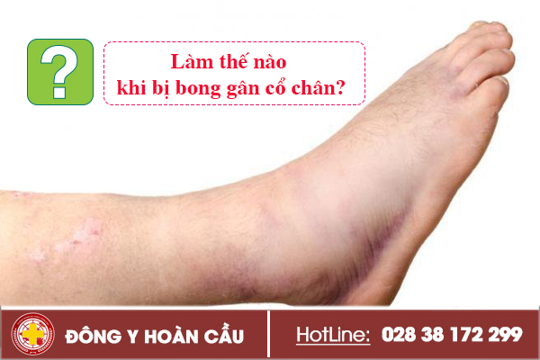 Làm thế nào khi bị bong gân cổ chân?   Phòng khám đa khoa Hoàn Cầu