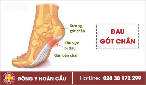 Lý do đau gót chân mà nhiều người hay gặp phải | Phòng khám đa khoa Hoàn Cầu