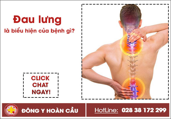 Dấu hiệu đau lưng điển hình không thể chủ quan | Phòng khám đa khoa Hoàn Cầu