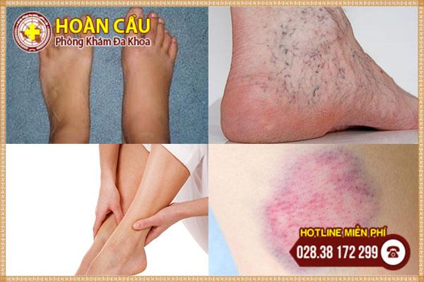 Dấu hiệu giãn tĩnh mạch chân cần chú ý và cách điều trị | Phòng khám đa khoa Hoàn Cầu