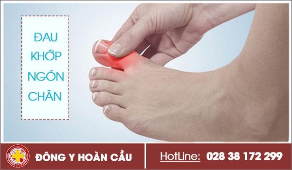 Hiện tượng đau khớp ngón chân cái và cách điều trị dứt hẳn cơn đau cực nhanh | Phòng khám đa khoa Hoàn Cầu