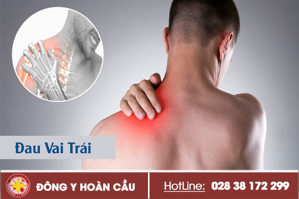 Dấu hiệu đau vai trái cần nên cảnh giác | Phòng khám đa khoa Hoàn Cầu