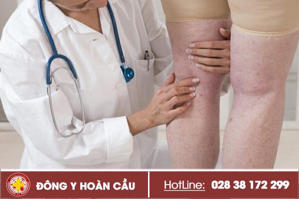 Cách điều trị giãn tĩnh mạch chân hiệu quả lâu dài | Phòng khám đa khoa Hoàn Cầu