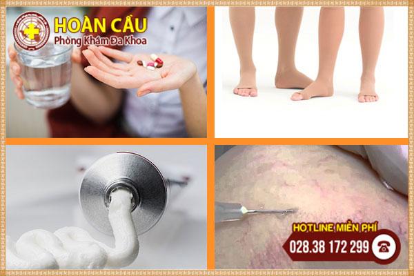 Sự thật chưa biết về bệnh giãn tĩnh mạch chân và cách điều trị | Phòng khám đa khoa Hoàn Cầu