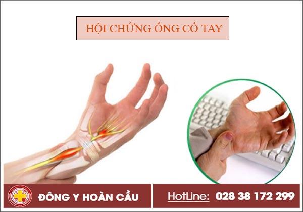Tìm hiểu triệu chứng của hội chứng ống cổ tay và cách điều trị   Phòng khám đa khoa Hoàn Cầu