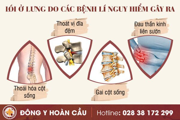 Lói ở lưng - cảnh báo nguy cơ mắc bệnh xương khớp nguy hiểm | Phòng khám đa khoa Hoàn Cầu