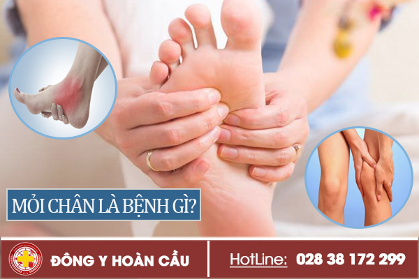 Cảnh giác khi bị mỏi chân kéo dài | Phòng khám đa khoa Hoàn Cầu