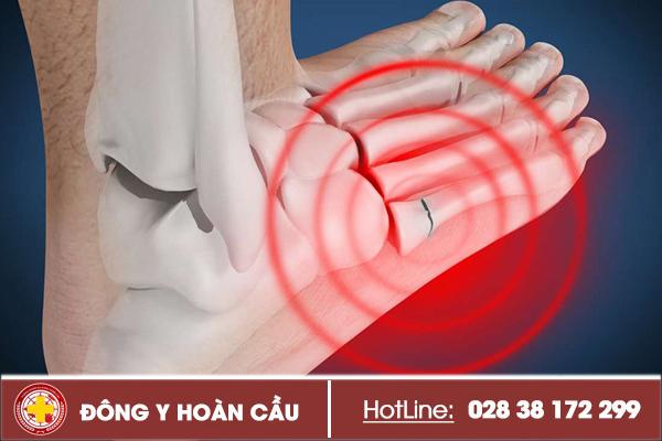 Nhức mỏi lòng bàn chân có thể là triệu chứng bệnh | Phòng khám đa khoa Hoàn Cầu