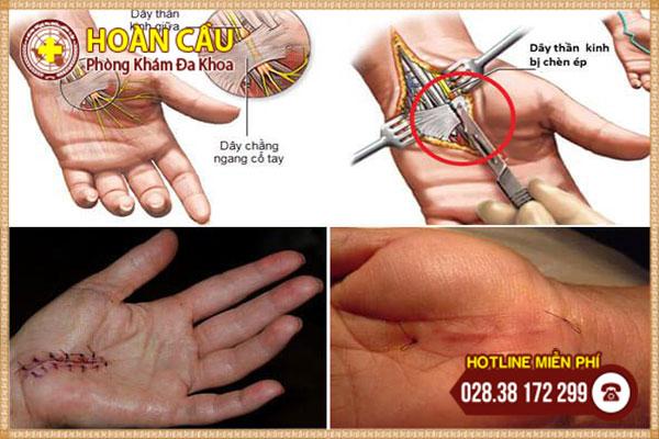 Phẫu thuật hội chứng ống cổ tay | Phòng khám đa khoa Hoàn Cầu