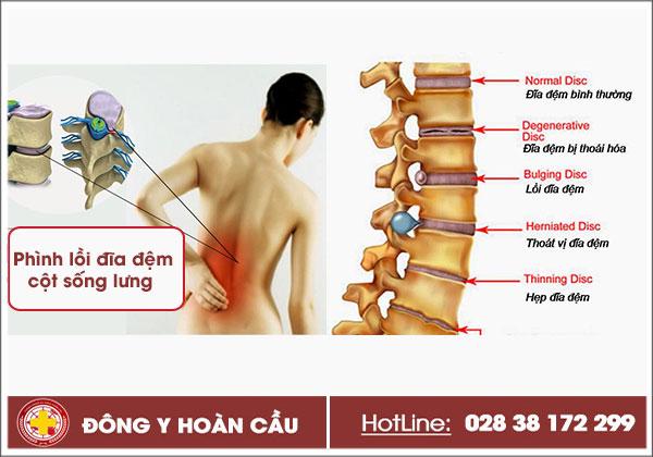 Phình lồi đĩa đệm cột sống lưng là gì? Triệu chứng điển hình và cách điều trị | Phòng khám đa khoa Hoàn Cầu
