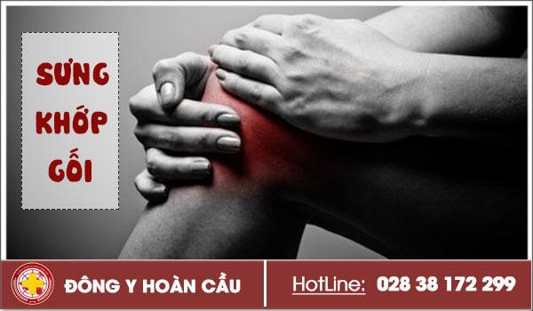 Sưng đau khớp gối có phải bị viêm bao hoạt dịch   Phòng khám đa khoa Hoàn Cầu