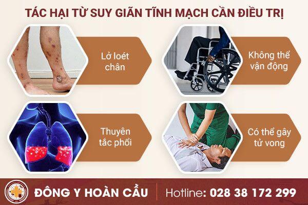 Bệnh suy giãn tĩnh mạch - nguyên nhân gây tử vong | Phòng khám đa khoa Hoàn Cầu