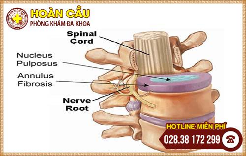 Điều trị thoát vị đĩa đệm cột sống cổ ở đâu tại TP.HCM? | Phòng khám đa khoa Hoàn Cầu