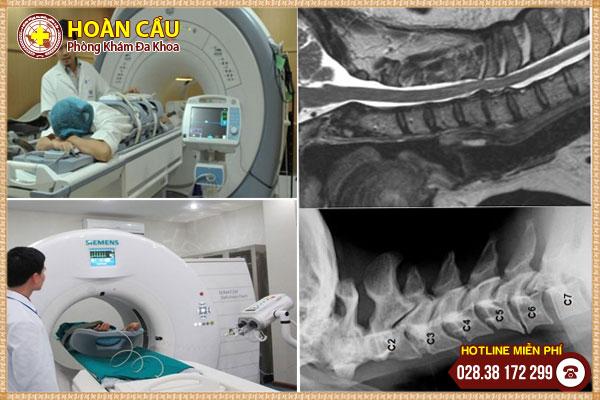 Thoát vị đĩa đệm khi nào cần chụp MRI? | Phòng khám đa khoa Hoàn Cầu