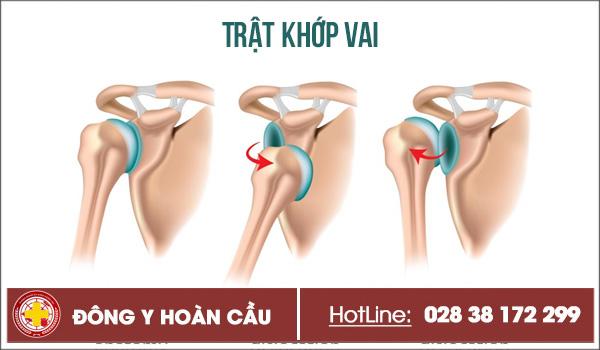 Trật khớp vai - điển hình của chấn thương xương khớp   Phòng khám đa khoa Hoàn Cầu