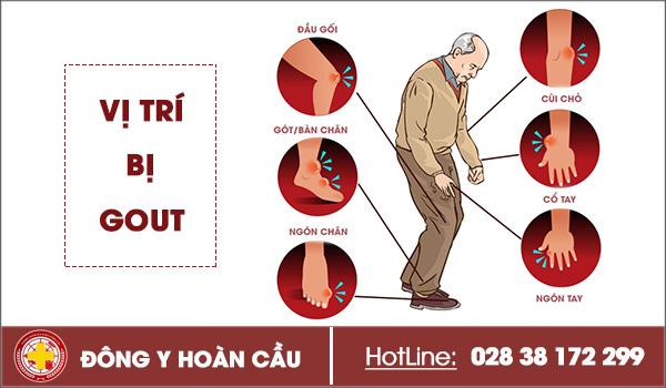 Nhận biết chính xác triệu chứng của bệnh gout và các biến chứng khó lường | Phòng khám đa khoa Hoàn Cầu
