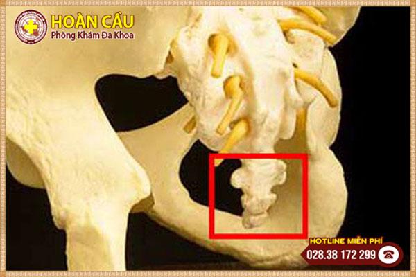 Đau xương cùng cụt nguyên nhân do đâu và có nguy hiểm không? | Phòng khám đa khoa Hoàn Cầu