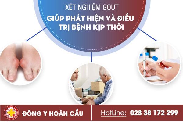 Xét nghiệm gout - giúp phát hiện và điều trị bệnh kịp thời | Phòng khám đa khoa Hoàn Cầu