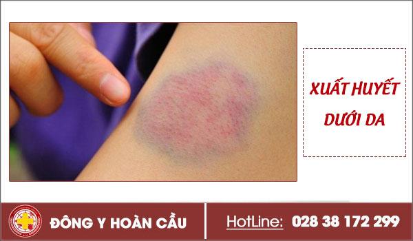 Xuất huyết dưới da là bệnh nguy hiểm đừng nên chủ quan | Phòng khám đa khoa Hoàn Cầu